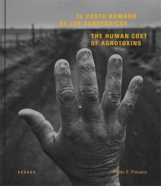 El costo humano de los agrotóxicos The human cost of Agrotoxins